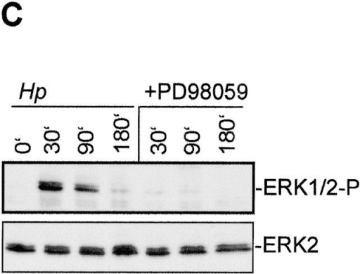 H. pylori–induced motogenic response requires ERK activity. (A) H. pylori induces PI3-K–dependent PKB phosphorylation. AGS cells were pretreated with inhibitor of PI3-K (Ly) and infected with H. pylori. Total cell lysates were prepared at the indicated time points after infection and analyzed by Western blot analysis using phospho-PKB (Ser473) antibody. (B) Inhibitor of PI3-K fails to suppress the motogenic response of AGS cells after H. pylori infection. AGS cells were pretreated with Ly294002 and infected with H. pylori. Phase-contrast microscopy was performed at 4 h after infection. (C) Pretreatment of AGS cells with MAPK/extracellular regulated kinase (MEK) inhibitor PD98059 inhibits ERK1/2 activation by H. pylori. AGS cells were pretreated with or without PD98059 and infected with H. pylori. Total cell lysates were prepared at the indicated time points after infection and analyzed by Western blot analysis using phospho-p44/42 MAPK antibody. (D) Treatment with the MEK inhibitor PD98059 blocks the motogenic response in AGS cells. AGS cells were pretreated with the MEK inhibitor PD98059 and infected with H. pylori. Phase-contrast microscopy was performed 4 h after infection.