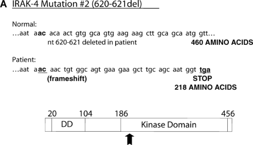 Identification and functionality of deletion mutation in patient's IRAK-4. (A) Illustration of effect of AC deletion at nucleotides 620-621 in the patient (620-621del), resulting in a truncated form of IRAK-4 (M #2). Arrow indicates approximate location of truncation in IRAK-4 protein. (B) Vectors encoding the WT (N) or mutated (M #2) forms of IRAK-4 were expressed in HEK293T cells (10 μg vector/transfection), and cell lysates subjected to Western blot analysis using anti-Flag Ab as described in Fig. 8. (C) Overexpression of WT (N), but not the 620-621 deleted mutant (M #2), IRAK-4 expression vectors (10 μg/transfection) differentially modulate IRAK-1 kinase activity (see Fig. 8 B; n = 3).
