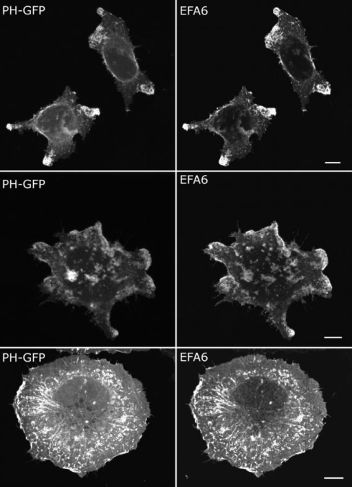 EFA6 induces formation of PIP2-enriched protrusions and the appearance of PIP2-labeled endosomal structures. HeLa cells were transfected with plasmids encoding EFA6 and PH-GFP and then fixed (top and middle) or treated with CD (100 nM for 30 min) before fixing (bottom). Bars, 10 μm.