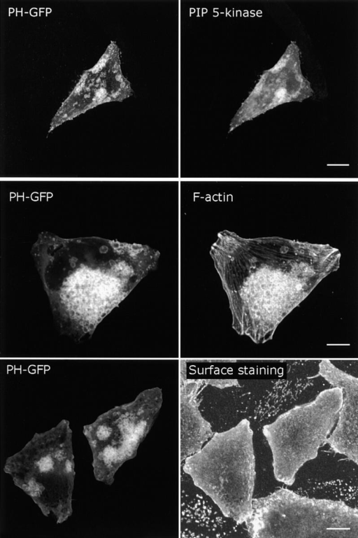 Overexpression of PIP 5-kinase induces the accumulation of PIP2-positive actin-coated vacuoles. HeLa cells were cotransfected with PIP 5-kinase and PH-GFP for 44 h, fixed, and probed with myc antibody to detect PIP 5-kinase (top), with phalloidin (middle), and the surface was stained using Alexa 594–conjugated concanavalin A (bottom). Bars, 10 μm.
