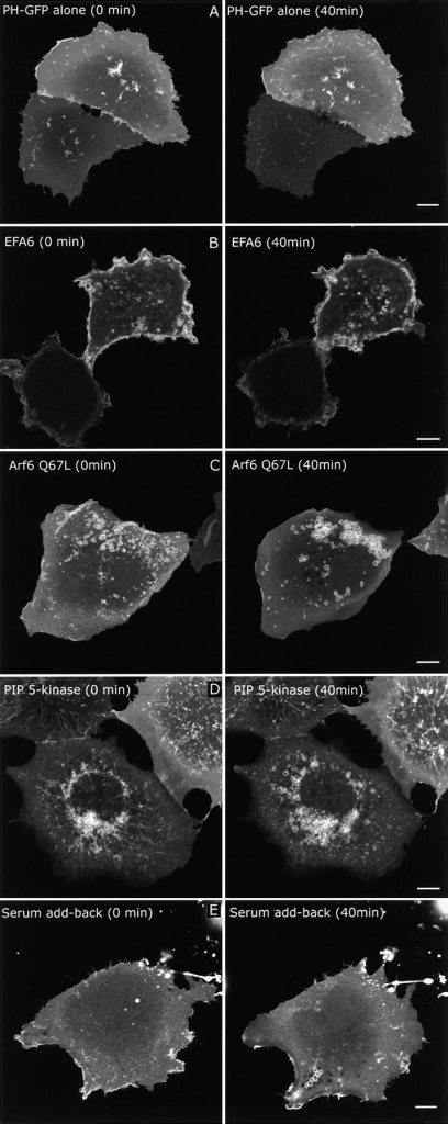 Live cell dynamics of PIP2-labeled membranes after Arf6 activation. Cos cells were transfected with PH-GFP alone (A), EFA6 (B), or Arf6 Q67L (C) or PIP 5-kinase (D) and then imaged 18 h after transfection for ∼40 min. For serum add-back (E), PH-GFP–expressing cells were serum starved overnight. Serum (20%) was added immediately before imaging. Images of the subject cells taken at 0 and 40 min are shown. See also QuickTime videos 1–5 of each condition available at http://www.jcb.org/content/vol154/issue5. Each video shows the time points between the still images, are played at equivalent frame rates, and were recorded over the same approximate length of time. Bars, 10 μm.
