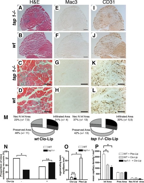 Depletion of circulating monocytes reverses tissue protection in tsp-1−/− mice.Histological analysis of gastrocnemius muscle sections at d4 after ischemia under Clo-Lip treatment. (A–D) show H&E staining. (E–H) and (I–L) show immunostainings of adjacent sections for macrophages using Mac-3 Ab, and endothelial cells using CD31 Ab, respectively. (A, B; E, F; I, J) scale bar = 500 µm; (C, D; G, H; K, L) scale bar = 200 µm. (M) Quantification of histologically different area types ratio; mean±S.E.M. are shown, n = 5. (N) Proportion of mice exhibiting macroscopic necrosis under Clo-Lip treatment, d4 after ischemia. * = p<0.05, n = 10. (O) Quantification of regenerating basic myofibers in necrotic areas, mean±S.E.M. are shown, * = p<0.05, n = 10. (P) Quantification of capillary density under Clo-Lip treatment in the different area types in gastrocnemius muscles, d4 after ischemia; Pbs-Lip injected mice served as control. Mean±SEM are shown. * = p<0.05; n = 5.