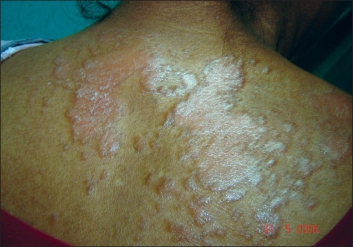 Papules and coalescent plaques on the exposed areas of the back