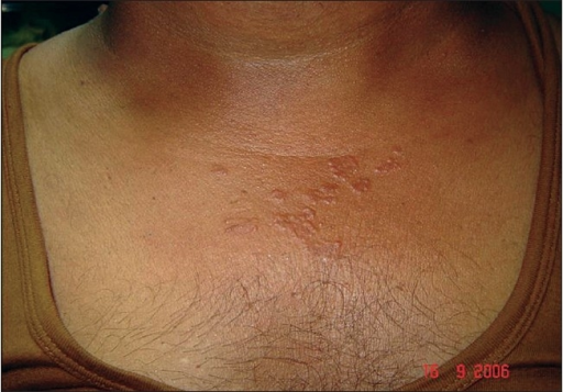 Papular skin lesions on upper chest in Case 2