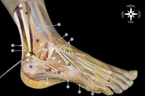 anatomy of the ankle ligaments a pictorial essay Understanding the anatomy of the ankle ligaments is important for correct  diagnosis and treatment ankle ligament injury is the most frequent.