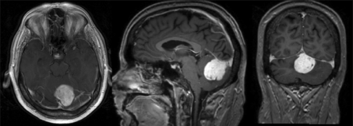 Axial (left), sagittal (center), and coronal (right) T1-weighted MRIs with gadolinium enhancement illustrating suboccipital mass at patient's initial presentation