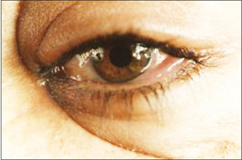 Left orbital proptosis with chemosis.