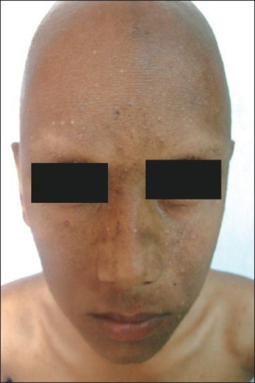 Folliculitis decalvans: symptomen, oorzaak en behandeling ...