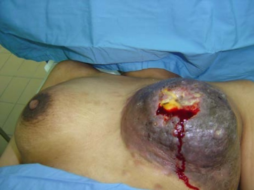 29-year- old female presented with progressive left breast cancer of one and half year's duration 2005.