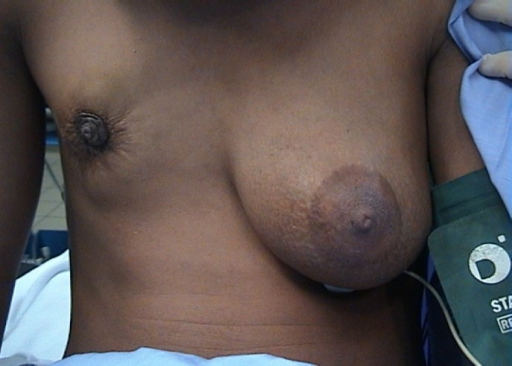 29-year-old lactating female. She and her physician watched her right breast disappear with cancer. Was reassured for nine months before referral - 2004