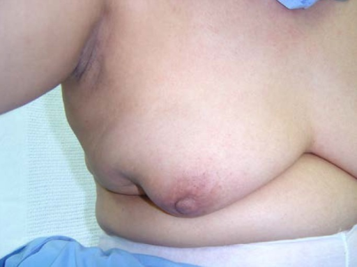 41-year-old female presented with right breast mass. Only referred when skin changes developed – 2005.