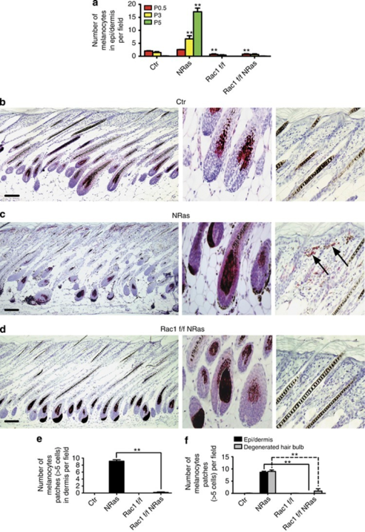 Rac1 is required for NRasQ61K-induced survival of murine dermal melanocytes. (a) Number of melanocytes in epi/dermis at P0.5, P3, and P5 per field ( × 10 objective) from (⩾3 pups, 3 litters). Dorsal skin from P14 control (Ctr) (b), NRas Ctr (c), and Rac1 f/f NRas (d) mice with anti-dopachrome tautomerase (melanocytes). High-magnification images of hair follicle and dermis shows typical cluster of excess dermal melanocytes in NRas mouse (arrow). (e) Number of patches (⩾5 cells) of melanocytes in dermis per field at P14 (from ⩾3 pups, 3 litters). (f) Number of patches (⩾5 cells) of melanocytes in dermis or former hair bulb per field at P21 (from ⩾3 pups, 3 litters). **P<0.01 by t-test. Bars=100 μm.