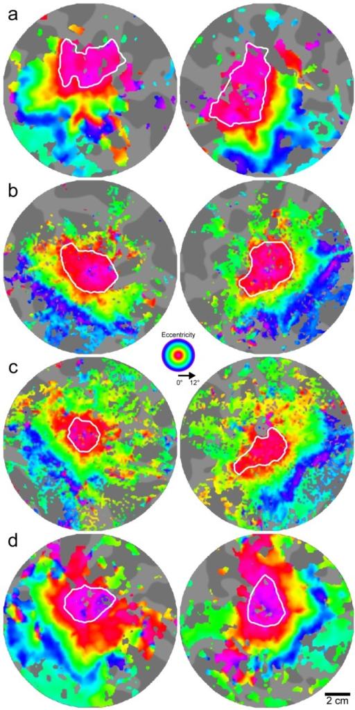 The area of the foveal confluence is similar in both BCM carriers and normal controls.Flattened pseudo-color phase maps are used to visualize retinotopic maps for: a) JC_1041, b) JC_1044, c) JC_0120, and d) control. Expanding ring stimuli were used to map retinotopic eccentricity. White contours outline the foveal confluence (0°–2°) of early visual areas. Image pairs for each subject are left and right hemispheres. Gray background shows flat map of cortical anatomy. Dark regions are sulci; bright regions are gyri. Note that because the underlying anatomy is different for each subject and hemisphere, areas are not directly comparable between images; measurements are listed in Table 2.