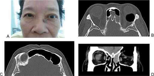 (A) Left exophthalmos, 15 mm on the right and 22 mm on the left by Hertel exophthalmometry. Axial imaging of computed tomography (B, C) showing left frontal sinus pneumocele and orbital emphysema protruding the eye ball forward. Coronal imaging (D) showing that the left frontal sinus was remarkably enlarged and the orbital roof was partially absent. The frontal sinus ostium was occluded with the mucocele that served a one-way valve between the frontal and the ethmoidal sinuses.