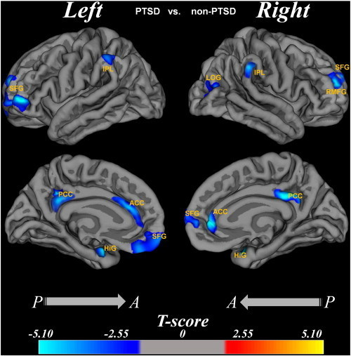 The cortical thickness difference between PTSD group and non-PTSD group.Region abbreviations from FreeSurfer model: SFG, superior frontal gyrus; HiG, hippocampal gyrus; IPL, inferior parietal lobes; ACC, anterior cingulate cortex; PCC, posterior cingulate cortex; SFG, superior frontal gyrus; RMFG, rostral middle frontal gyrus; LOG, lateral occipital gyrus. The T value color was overlaid on the reconstruction image, and the color bar was shown at the bottom. The age and gender effects were removed by regression.