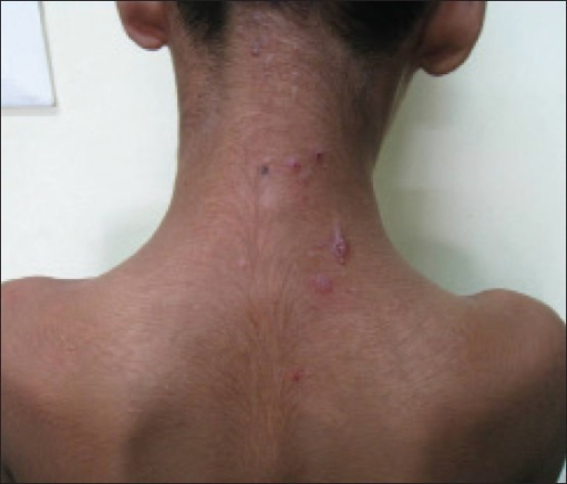 erythematous excoriated papules over nape of the neck | open-i, Cephalic Vein