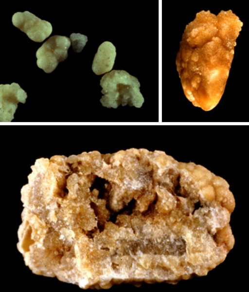 COM stones subtype Ic. Top surface. On the left side, the stones are whitish. They came from an infant aged <2 years. Bottom section. Note the very light color in most parts of the stones