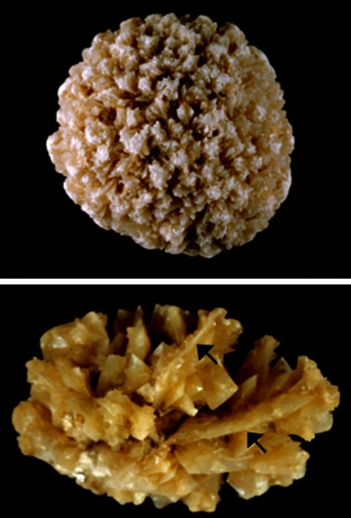 COD stones subtype IIa. Top stone made of small octahedral crystals of weddellite as commonly observed in patients who form stones because hypercalciuria. Bottom stone made of both small and very large crystals (arrows) of weddellite as commonly found in patients who suffered hypercalciuria, hyperoxaluria and, often mild hypocitraturia