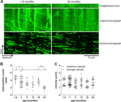 Age-associated changes in NMNAT2-Venus axonal transport in optic nerve. (A) Representative straightened axon, kymograph, and kymograph of tracked particles of NMNAT2-Venus transport in optic nerve of 1.5- and 24-month-old NMNAT2-Venus (line 8) mice. The straightened axon represents the first frame of the time lapse recording (total 120 frames; frame rate 2 fps) that was used to generate the original kymograph. Moving particles were tracked using the ImageJ Difference Tracker set of plugins (see Table 2 for analysis parameters) and another kymograph generated to show successfully tracked particles. (B, C) Quantification of axonal transport parameters in optic nerve explants from NMNAT2-Venus line 8 animals of indicated ages. Each data point represents the mean value obtained for 1 animal (7 fields of view and, on average, 12 axons per animal). Horizontal bar indicates mean and error bars standard error of the mean. *Statistically significant difference between indicated ages or groups of ages. (*p < 0.05, *** p < 0.001; 1-way analysis of variance with Tukey multiple comparisons post-test). The following parameters are shown: (B) total particle count, (C) particle velocity. (For interpretation of the references to color in this Figure, the reader is referred to the web version of this article.)