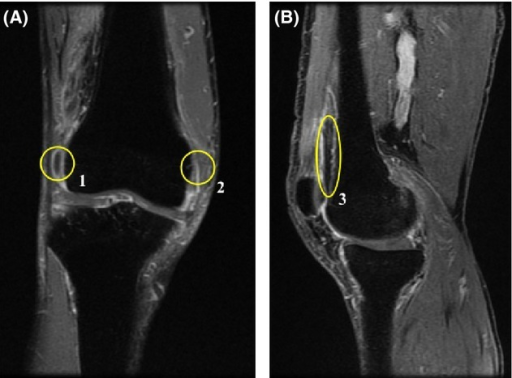 MRI findings. (A) The coronal and (B) sagittal T2-weighted (T2-STIR) MRI images of the right knee. These images reveal effusion of synovial fluid (circles 1 and 3), thickening of the inflamed synovium (circles 1–3) and mild degenerative bone changes (circles 1–3).