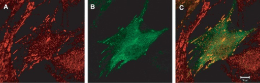 Co-localization of DLC-1 and tensin. Confocal photomicrographs showing endogenous tensin (red, A) and transfected GFP-DLC1 fusion protein (green, B) in human fibroblasts. The merged image (C) shows co-localization of tensin and DLC-1 in focal adhesions, indicated in yellow. The bar represents 10 μm. (Images courtesy of Dr. Guorong Li, Laboratory of Cellular Oncology, National Cancer Institute).