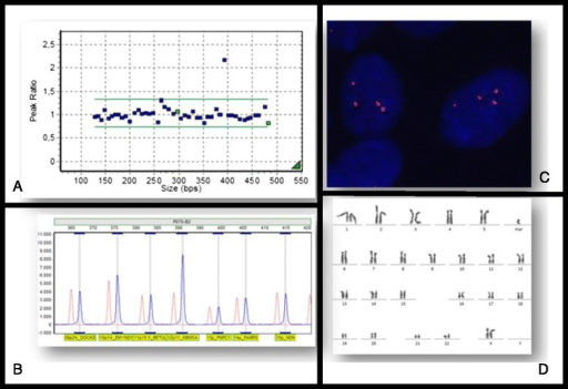 a and b: Histogram showing MLPA analysis of DNA from buccal smear; c: FISH in interphase cells showing 12p specific subtelomeric probe (Aquarius®, Cytocell Cambridge, UK ) hybridization; d: Fibroblast skin karyotype showing isochromosome 12p in G band