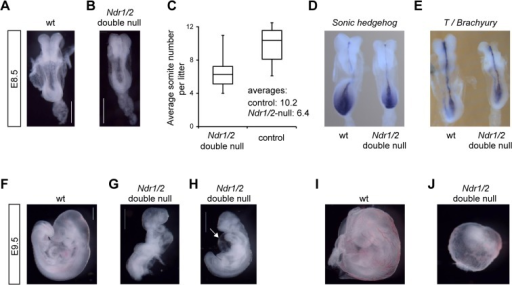 NDR kinases are essential for growth, cardiac development and blood vessel remodeling from about embryonic day 8 onward in mouse embryos.(A, B) Bright field images of wild-type (A) and Ndr1/2-double  (B) littermates at E8.5. Both embryos are of the 6-somite stage. Note that the Ndr1/2-double  somites are small and irregularly shaped. Scale bars correspond to 500μm. (C) Average somite numbers of wild-type and Ndr1/2-double  littermates at E8.5. Data correspond to the analysis of a total of 15 litters and are blotted as box and whisker chart illustrating the distribution of somite numbers per litter and genotype. Average somite numbers are indicated. (D, E) Distribution of Shh (D) and T/brachyury (E) transcripts in wild-type (left) and Ndr1/2-double  littermate embryos (right) at E8.5. Four animals per genotype were analyzed, and all embryos displayed the staining shown in Fig 3D and 3E. (F, G, H) Bright field images of wild-type (F) and Ndr1/2-double  (G, H) littermate embryos at E9.5. 56 Ndr1/2-double  and 163 control embryos at E9.5 were analyzed. White arrow in H points to the pericardial edema. Scale bars correspond to 500μm. (I, J) Bright field images of the yolk sacs of wild-type (I) and Ndr1/2-double  (J) littermate embryos at E9.5. All Ndr1/2-double  yolk sacs (n = 56) displayed defective vascular development as illustrated in Fig 3J.