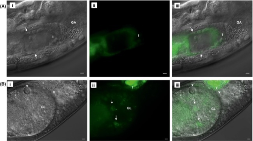 Intestinal and extra-intestinal locations of GFP-tagged Legionella pneumophila in Caenorhabditis elegans. Microscopic images of glo-3(kx94) nematodes fed with Lp02 PmagA::gfp strain for (A) 5 days and (B) 6 days. Note the fluorescent rod-shaped bacteria (white arrow) in the intestine in (A) and forming a highly fluorescent bacterial mass in the intestine in (B). Note also the fluorescent (white arrows) and nonfluorescent (white arrowheads) coccoid-shaped bacteria in vacuoles (i.e., Legionella-containing vacuoles) in (B) of which only one is visible due to differing focal planes. Panels (i–iii) represent DIC, green and merge channels. Scale bar is 5 μm. Still images in (B) taken from Video S5.