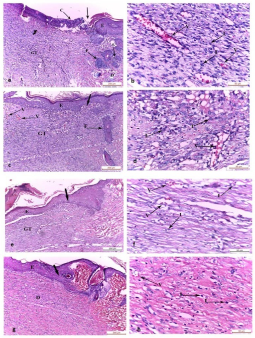 Photomicrographs of the skin wound area on the 10th day.a,b) control group showing wound surface covered by crust and the wound bed was filled with granulation tissue with absence of the epidermis and skin appendages. The adjacent normal skin showed normal epidermis, dermis, hair follicles and sebaceous gland. Wound granulation tissue showed inflammatory cell infiltrate and congested blood vessels. c,d) Group II showing wound surface covered with regenerated epidermis and wound bed filled with granulation tissue with inflammatory cell infiltrate, congested blood vessels and absence of skin appendages. e,f) Group III and g,h) Group IV showing wound surface covered by regenerated epidermis with increasing thickness than Group II and the wound bed was filled with granulation tissue with absence of skin appendages. Mild inflammatory cell infiltrate and few blood vessels were found in the dermis of wound bed compared to Group I and II. C: crust, GT: granulation tissue, E: epidermis, D: dermis, F: hair follicles, S: sebaceous gland, I: inflammatory cell infiltrate, thick arrow: junction between the normal skin and the wound area, V: blood vessel, (H&E, a-c-e-g x100; b-d-f-h x400)