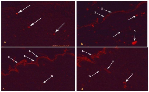 Photomicrographs of the skin wound area on the 10th day.a) Group III showing red fluorescent cells (arrows) within the proliferated granulation tissue in the ulcer. b) Group IV showing fluorescent cells (arrows) within the proliferated granulation tissue, the new regenerated epidermis (E) and new blood vessels (V). By the 15th day: c) Group III showing increasing area of fluorescent cells within the regenerated epidermis (E) and within the regenerated dermis (D) than day 10 groups. d) Group IV showed the highest distribution than previous groups of fluorescent cells within the regenerated epidermis (E), the regenerated dermis (D), blood vessels (V) and hair follicle (F). (PKH, x100)