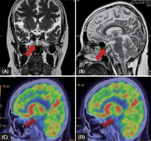 Preoperative imaging study including magnetic resonance imaging (A, B) and positron emission tomography-computed tomography pre- (C) and postdexamethasone injection (D), suggesting microadenoma.