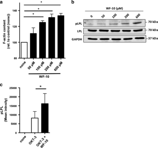 WF-10 induced L-plastin phosphorylation. (a) F-actin content in CTLs was analyzed by flow cytometry. CTLs were incubated with WF-10 for 2 h and stained with SiR actin (n=3; S.E.M.; *P<0.05). (b) CTLs were incubated with WF-10 for 2 h as indicated. After cell lysis, cytoplasmic fractions were prepared and proteins were subjected to western blot analysis using antibodies that are specific for phopsho-L-plastin (pLPL), L-plastin (LPL) or GAPDH. The blot is representative for three independent experiments. (c) Phosphorylation of L-plastin was analyzed in E/T couples using InFlow microscopy. The time point is 75 min after E/T couple formation (n=3; S.E.M.; *P<0.05).