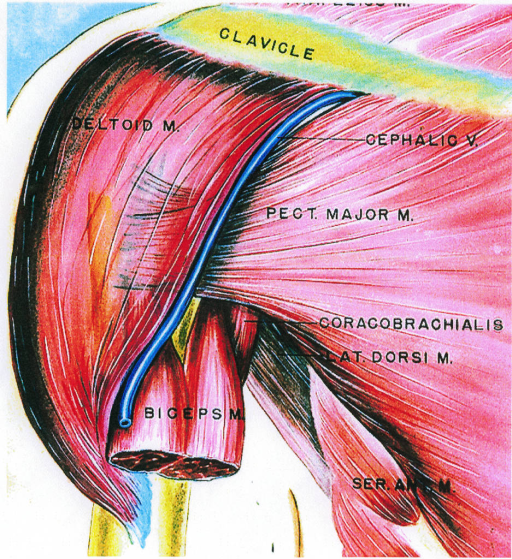 deltoid muscle; clavicle; cephalic vein; pectoralis major muscle; coracobrachialis (Pirogoff's aponeurosis); latissimus dorsi muscle; biceps muscle; serratus anterior muscle