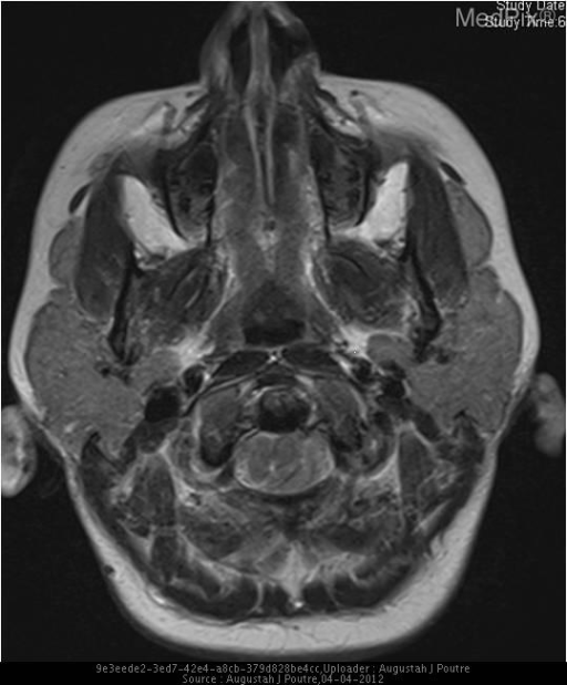 Axial T2 MR image at the C1 level demonstrates left cerebellar tonsillar herniation through the foramen magnum with associated cord displacement.