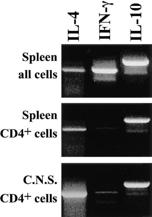 Th2 cells but not  Th1 cells are recovered from animals to which cells from Th2  cell cultures had been injected.  Spleen (top two panels) and CNS  cells from mice injected with  Th2 cells were prepared 40 d after injection, when mice were at  level 2 and 3 of EAE. The lower  two panels show purified CD4-positive cells. RT-PCR was performed to determine mRNA  levels of IL-4, IFN-γ, and IL-10.  The IFN-γ mRNA present in  total splenocytes and absent in  CD4 purified splenocytes and  lymphocytes from CNS is likely  coming from NK cells.