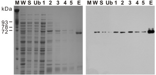 Affinity purification of rPfM18AAP. SDS-polyacrylamide gel (left) and immunoblot (right) showing the purification of rPfM18AAP. Lane M – erythrocyte membrane proteins; W – induced E. coli whole cell extract; S – soluble protein fraction after cell lysis; Ub – protein fraction that did not bind to the HIS-Select™ Magnetic Agarose Beads; 1–5 – consecutive 20 mM imidazole washes; E – 200 mM imidazole elution of rPfM18AAP.