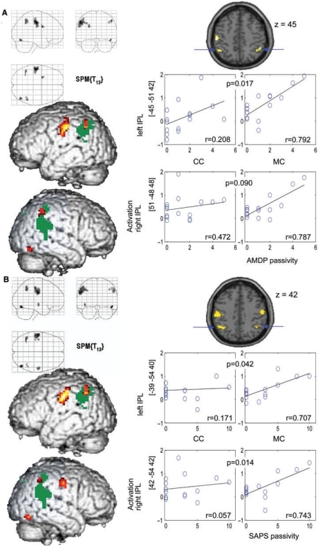 LEFT: Whole brain analysis of correlation of haemodynamic activation in the visuomotor MC and ratings of passivity symptoms from the AMDP (A) and SAPS (B) (P = 0.001 uncorr. for display; k > 10 voxel) overlayed on parietal clusters of main effects (MC–CC) of the monitoring task in the parietal cortex (dark green, P = 0.05 FDR corr.) for illustration. RIGHT: Scatter plots of passivity and beta estimates of activation in CC and MC extracted from spheres (10 mm) centred in indicated IPL coordinates. Correlations (Pearson's; r) in MC and CC are indicated as well as P-values specifying the significance of differences between these correlations.