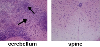 Inflammation (arrows) is focused on the cerebellum, not the spine, in mice lacking the IFNγ receptor.