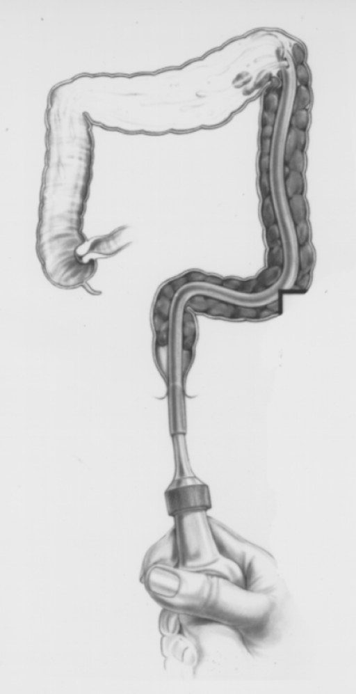 enema technique showing the tube high in the left colon