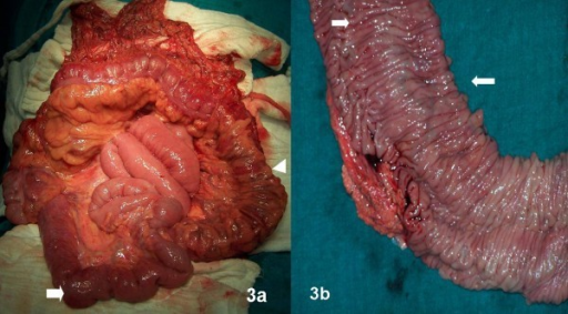 (A) Terminal ileum shows evidence of tortuous dilated veins on surface (arrows) with clear demarcation from proximal small bowel. Colon normal except for few dilated veins over surface of sigmoid (arrowhead). (B) Cut specimen of colon shows prominent tortuous sub-mucosal vessels (arrows).