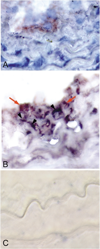 CD8b+ cells in the injured artery of recipient Rag-1−/− mice.Detection of CD8b+ cells (A; reddish-brown stain) in arteries of recipient Rag-1−/− mice 21 days after injury. Adjacent sections double-stained (B) for CD8b+ (orange arrow) and active caspase-3 (dark blue stain, black arrowhead) showed positive cells in close proximity. Omission of primary antibodies was used as control (C). 1000× magnification.