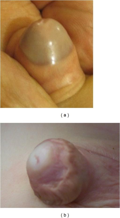 Adhesion Penis 5