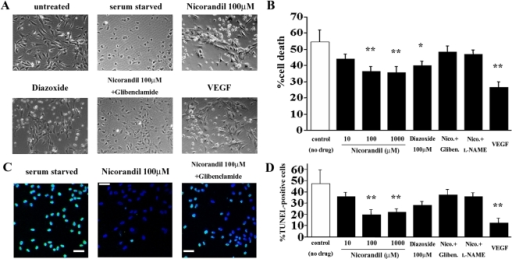"Nicorandil prevents the induction of vascular endothelial cell apoptosis in vitro.(A) The HUVECs were incubated in the serum-free medium in the absence or presence of nicorandil (10–1000 µmol/L) for 48 h. The serum-starved HUVECs exhibited apoptotic morphology, which is characterized by cell shrinkage (see ""serum starved""). (B) The viability of the HUVECs was measured with the MTS assay, and the percent cell death was calculated. Stimulation with nicorandil and diazoxide partially restored cell viability in a concentration-dependent manner. VEGF, vascular endothelial growth factor (positive control). *P<0.05 and **P<0.01 vs. control (no drug). (C) TUNEL staining revealed that a large number of the serum-starved HUVECs exhibited apoptotic morphology (left), and the apoptotic effects induced by serum starvation were attenuated by nicorandil (middle). TUNEL (green); nuclei (blue). (D) The TUNEL-positive nuclei in the serum-starved HUVECs were counted in 10 randomly selected fields and expressed as a percentage of the total number of nuclei. **P<0.01 vs. control (no drug)."