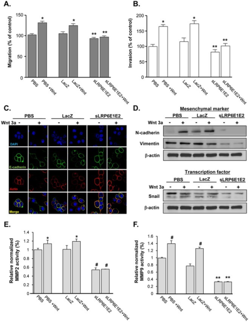 Decoy Wnt receptor sLRP6E1E2 inhibits cancer cell migration and invasion, and modulates expression of epithelial-to-mesenchymal transition markers and MMPs.(a) Quantitative analysis of A549 lung cancer cell migration. Experiments were performed in triplicate, and results are expressed as mean ± SEM. *P<0.05 versus PBS- or dE1-k35/LacZ-treated controls; **P<0.001 versus PBS or dE1-k35/LacZ with Wnt3a. (b) Invasion of tumor cells was quantified as number of cells in five fields of view per filter. Experiments were performed in triplicate, and results are expressed as mean ± SEM. *P<0.05 versus PBS- or dE1-k35/LacZ-treated controls; **P<0.001 versus PBS or dE1-k35/LacZ with Wnt3a. (c) Expression of EMT markers in H322 cells after 24 hr treatment with PBS, dE1-k35/LacZ, or dE1-k35/sLRP6E1E2 in the presence and absence of Wnt3a (100 ng/ml). Cells were stained with DAPI (blue), TRITC-labeled actin (red), or anti E-cadherin (green). Original magnification, ×630. (d) Expression of EMT-related markers in H322 cell lines. Expression levels of mesenchymal markers (N-cadherin & vimentin) as well as transcriptional factor (Snail) was determined by Western blotting. (e, f) A549 cells were transduced with dE1-k35/LacZ or dE1-k35/sLRP6E1E2 with or without Wnt3a (100 ng/ml). The enzyme activity of MMP-2 and MMP-9 was measured in supernatants collected from transduced cells at 48 hr using the Sensolyte 520 MMP-2 and MMP-9 assay kit. Experiments were performed in triplicate, and results are expressed as mean ± SEM. (e) *P<0.05, (f) #P<0.01 versus PBS- or dE1-k35/LacZ-treated controls; (e) #P<0.01, (f) **P<0.001 versus PBS or dE1-k35/LacZ with Wnt3a.