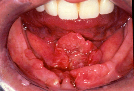 T4 SCC floor of mouth and alveolus. | Open-i