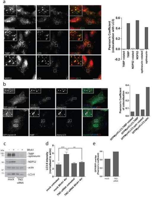 The myosin VI binding partners, T6BP, NDP52, and optineurin, colocalise with myosin VI on autophagosomes and are required for autophagosome biogenesis(a) Immunofluorescence microscopy was performed on RPE cells following treatment with 100 nM Bafilomycin A1 for 2 hours. Immunolabelling was performed against the indicated endogenous proteins, optineurin, T6BP, and NDP52 (red), and LC3 (green). Boxed regions provide higher magnification. From confocal images, a Pearson's coefficient was calculated to estimate the degree of colocalisation of the different autophagy adaptors with LC3. As a negative control, a Pearson's coefficient was calculated after rotation of one color image by 90 degrees. Results represent >20 cells from n=2 independent experiments. Scale bar, 20 μm. (b) Stable cherry-LC3 expressing RPE cells were transiently transfected with GFP-myosin VI, treated with Torin1 for 3 hours to induce autophagy, and subsequently processed for confocal immunofluorescence microscopy. Areas of colocalisation appear white in the merged three-color images and boxed regions provide areas of higher magnification. Scale bar, 20 μm. A Pearson's coefficient was calculated for the degree of colocalisation between the 3 colors. As a negative control, a Pearson's coefficient was calculated after rotating one color image by 90 degrees. Results represent >10 cells from n=2 independent experiments. (c) Hela cells were either mock transfected or cotransfected with siRNA targeted against T6BP, NDP52, and optineurin (TNO). Cells were either left untreated or treated with100 nM Bafilomycin A1 (BfnA1) for 4 hours. Western blot analysis was performed against the indicated proteins. (d) Quantitation of LC3-II intensity (+/− s.d.) was performed from Western blot data of TNO siRNA treated Hela cells. The results represent n=3 independent experiments. **p<0.01, ***p<0.001 (e) Immunofluorescence microscopy of RFP-GFP-LC3 expressing Hela cells transfected with TNO siRNA was performed and confocal images were evaluated for the correlation in GFP and RFP punctae signal overlap using the Image JACoP plugin. Results are calculated from >100 cells from n=2 independent experiments represented as the Pearson's coefficient of GFP/RFP signal overlap.