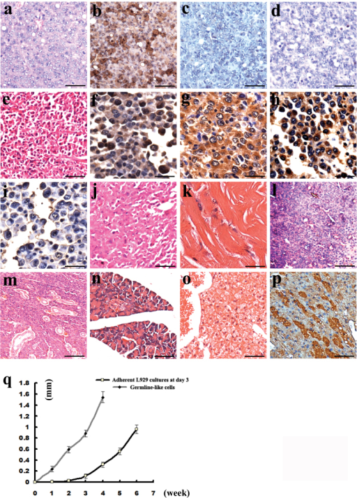 Pathological features and marker expression of tumors derived from L929 cells with germline-like cells.(a-d) Pathological features of the poor-differentiated section and germline relative markers. (a) Pathological features. (b) Oct4. (c) DAZL. (d) VASA. (e-i) Pathological features of sarcoma-like section and expression of germline relative markers. (e) Pathological features. (f) Oct4. (g) DAZL. (h) VASA. (i) SCP3. (j) showing epithelium-like and sarcoma-like pathological features. (k-o) showing the well-differentiated phenotypes in the tumors. (k) Striated muscles. (l) Bone-like tissues. (m) Gland-like tissues. (n) Digestive gland-like tissues. (o) Liver-like tissues. (p) AFP expression in (o). (q) Tumor growth curve from germline-like cells and adherent L929 cultures at day 3. Scale bars = 50 μm in (a-e, l, m ), 25 μm in (f-k, n-p).