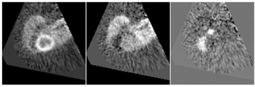 PCA result example showing additional images.Three principal components resulting from applying PCA to the same study as the one used to generate Figure 4. They have been chosen to represent the myocardium (left), blood pool (center) and right ventricle (right). These images are shown during the process() method execution, prior to displaying the final clusters.