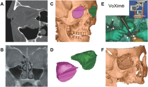 Image analysis in sagittal view (A) and coronal view (B), (C) pre-operative segmentation (CT scan), (D) both virtual segments, (E) intra-operative Navigation-assisted surgery using VoXim®, (F) post-operative control (CBCT-scan).