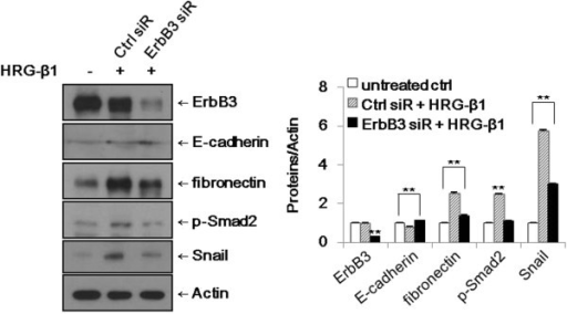 Knockdown of ErbB3 suppresses HRG-β1-induced EMT in SK-BR-3 cells. The cells were transfected with control (Ctrl) or ErbB3 siRNAs and treated with 25 ng/ml of HRG-β1 for 24 h. The expressions of ErbB3, E-cadherin, fibronectin, phospho-Smad2, and Snail were analyzed by western blotting. β-actin was reprobed as a loading control. Data represent the means ± SD of three independent experiments. *P < 0.05, **P < 0.01, significant difference.
